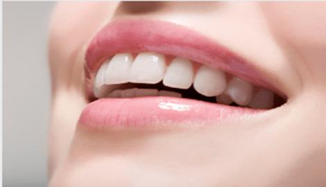 Улыбка без комплексов: коррекция десневой улыбки