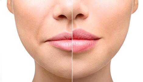 Увеличение губ: мифы и правда