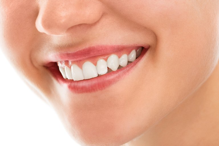 Гингивальная улыбка: коррекция